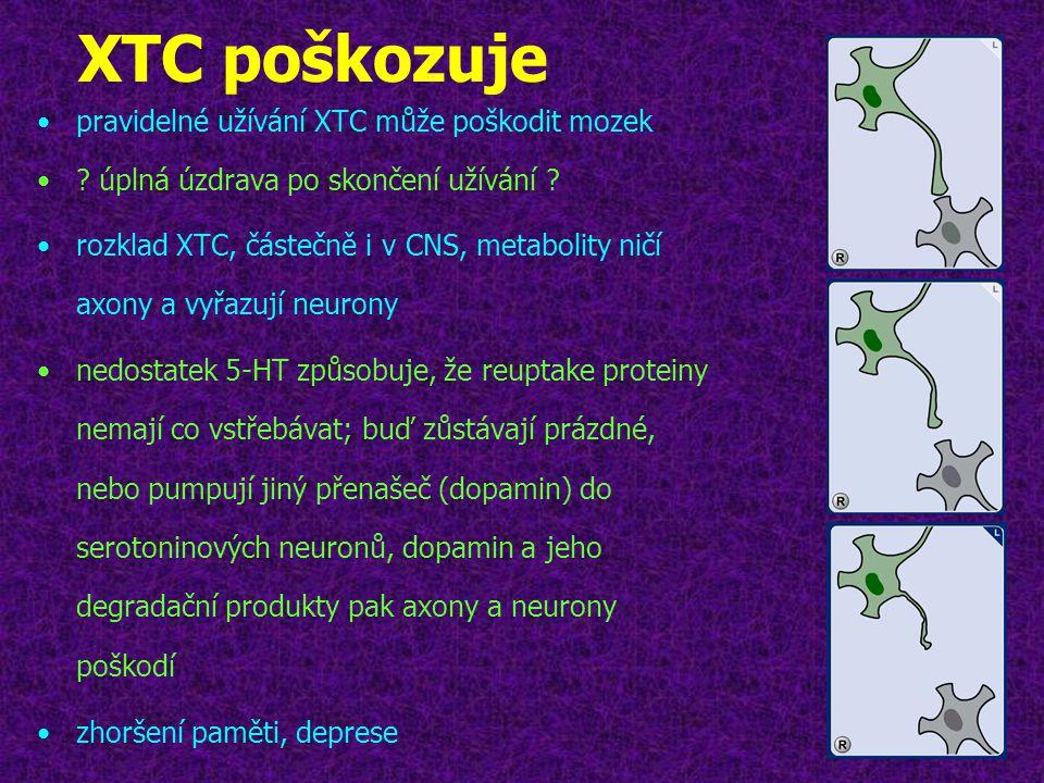 XTC poškozuje pravidelné užívání XTC může poškodit mozek