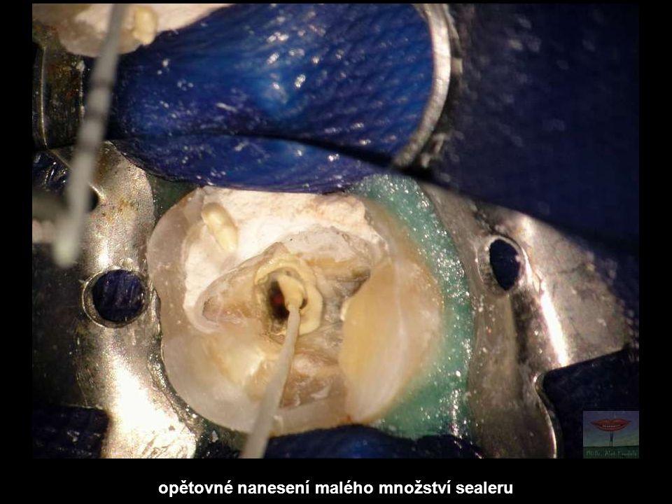 opětovné nanesení malého množství sealeru
