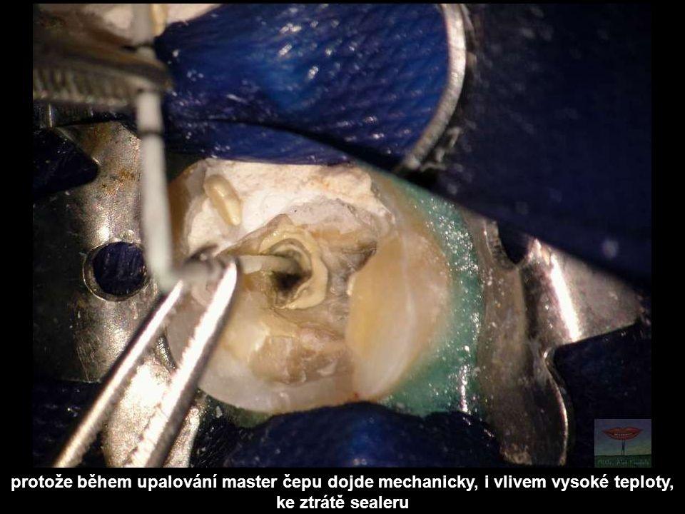 protože během upalování master čepu dojde mechanicky, i vlivem vysoké teploty, ke ztrátě sealeru