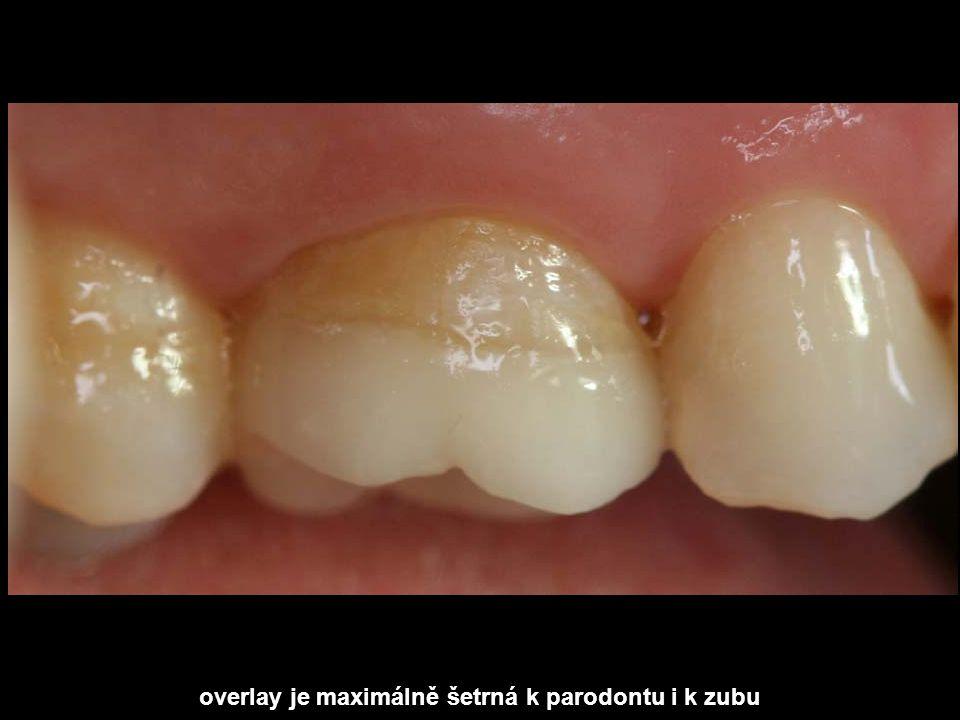 overlay je maximálně šetrná k parodontu i k zubu