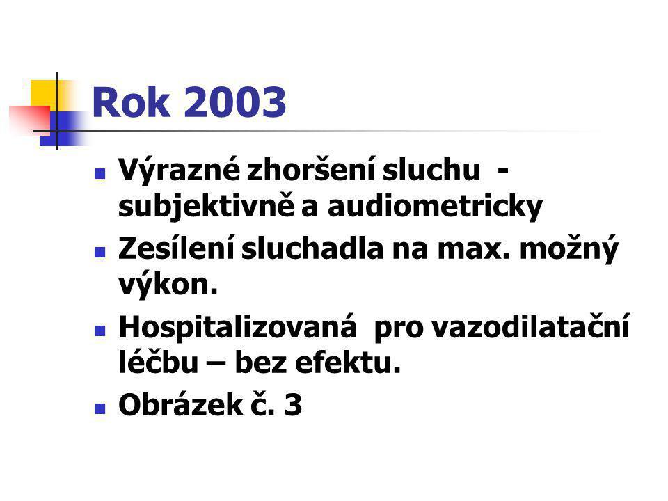 Rok 2003 Výrazné zhoršení sluchu - subjektivně a audiometricky