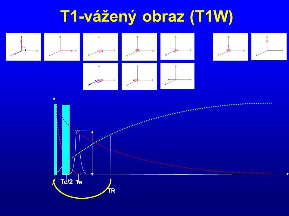 T1-vážený obraz (T1W) Te/2 Te TR