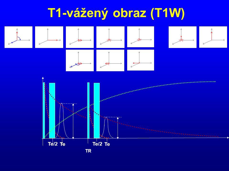 T1-vážený obraz (T1W) Te/2 Te Te/2 Te TR