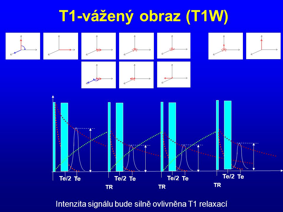 Intenzita signálu bude silně ovlivněna T1 relaxací