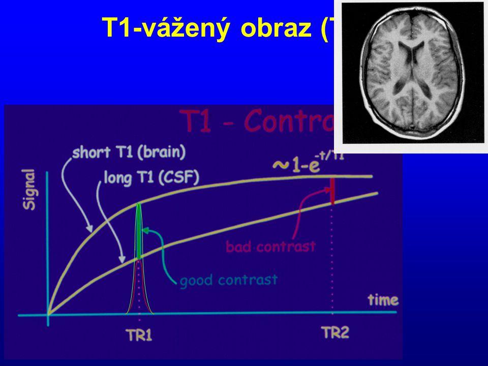 T1-vážený obraz (T1W)