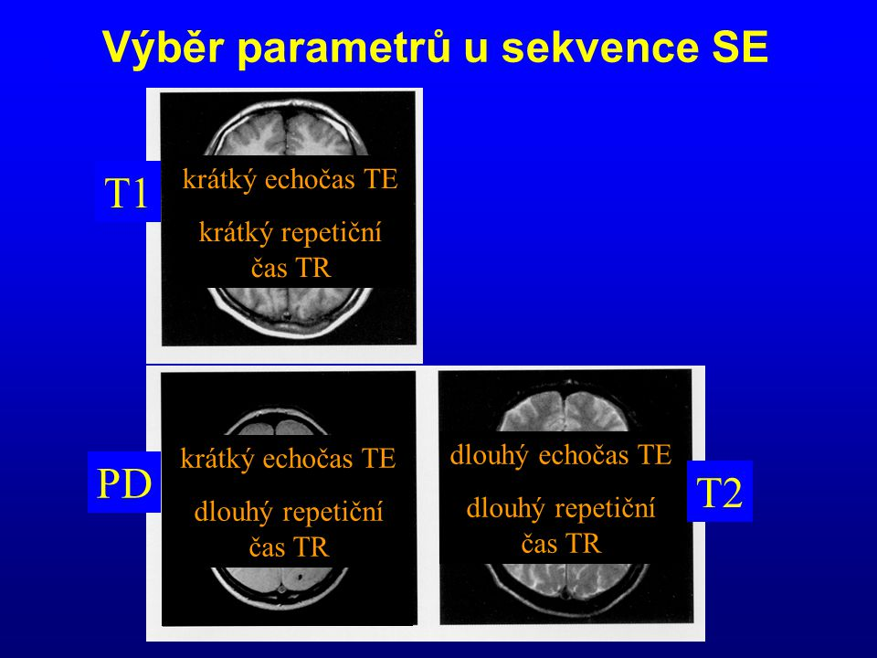 Výběr parametrů u sekvence SE