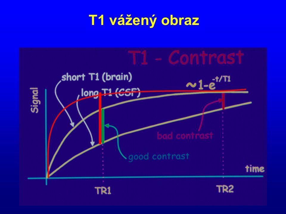 T1 vážený obraz