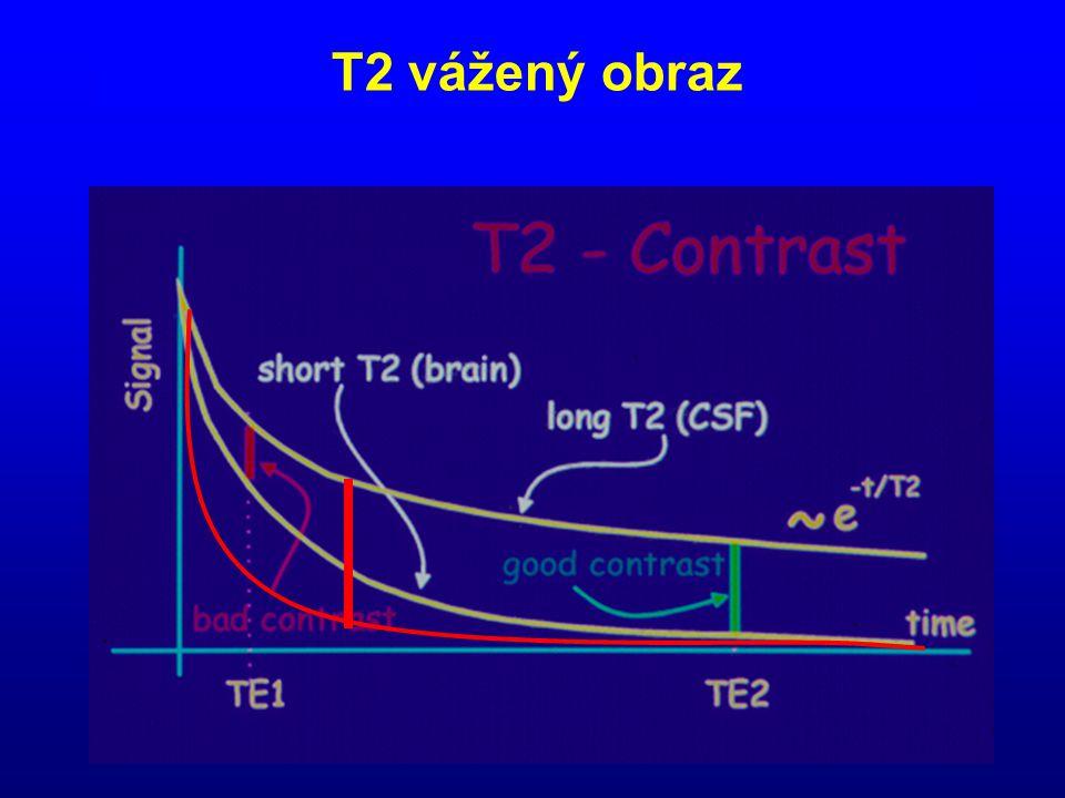 T2 vážený obraz