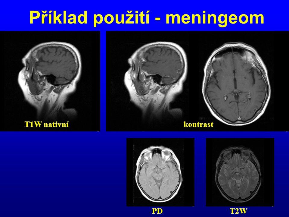 Příklad použití - meningeom