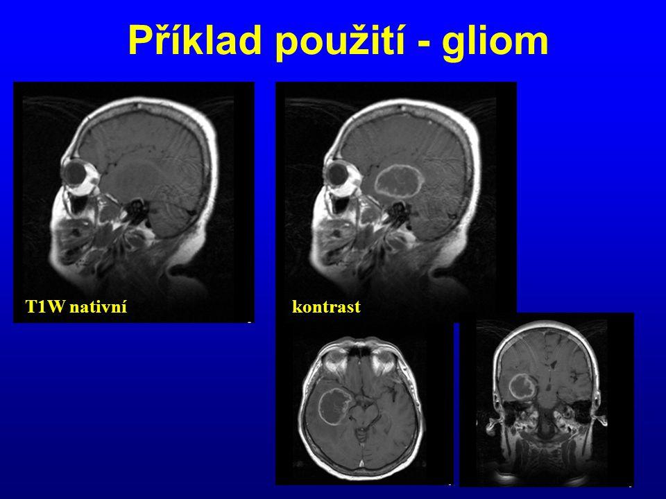 Příklad použití - gliom