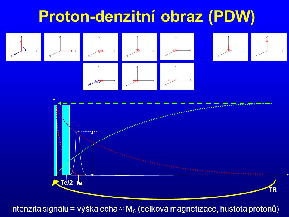 Proton-denzitní obraz (PDW)