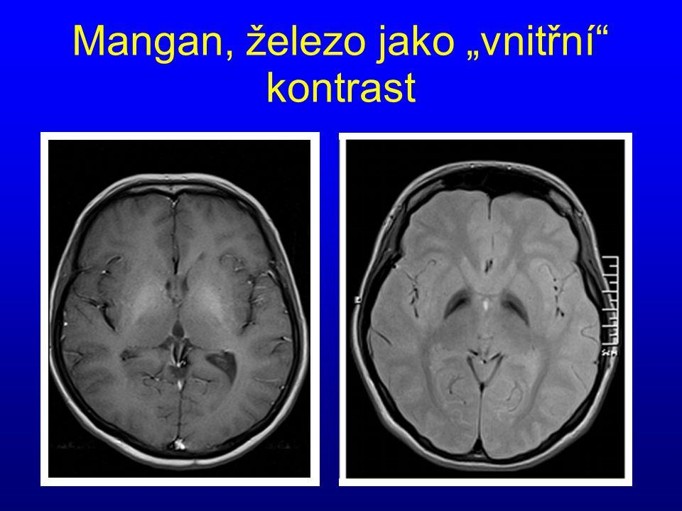 """Mangan, železo jako """"vnitřní kontrast"""