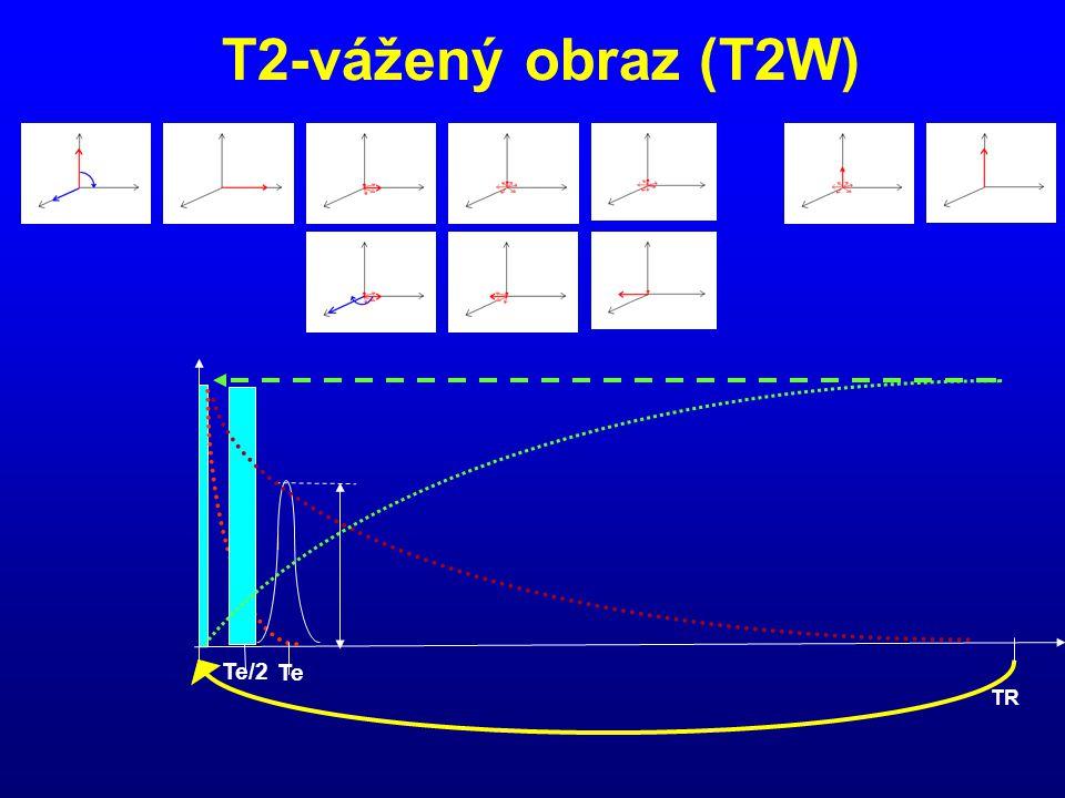 T2-vážený obraz (T2W) TR Te/2 Te