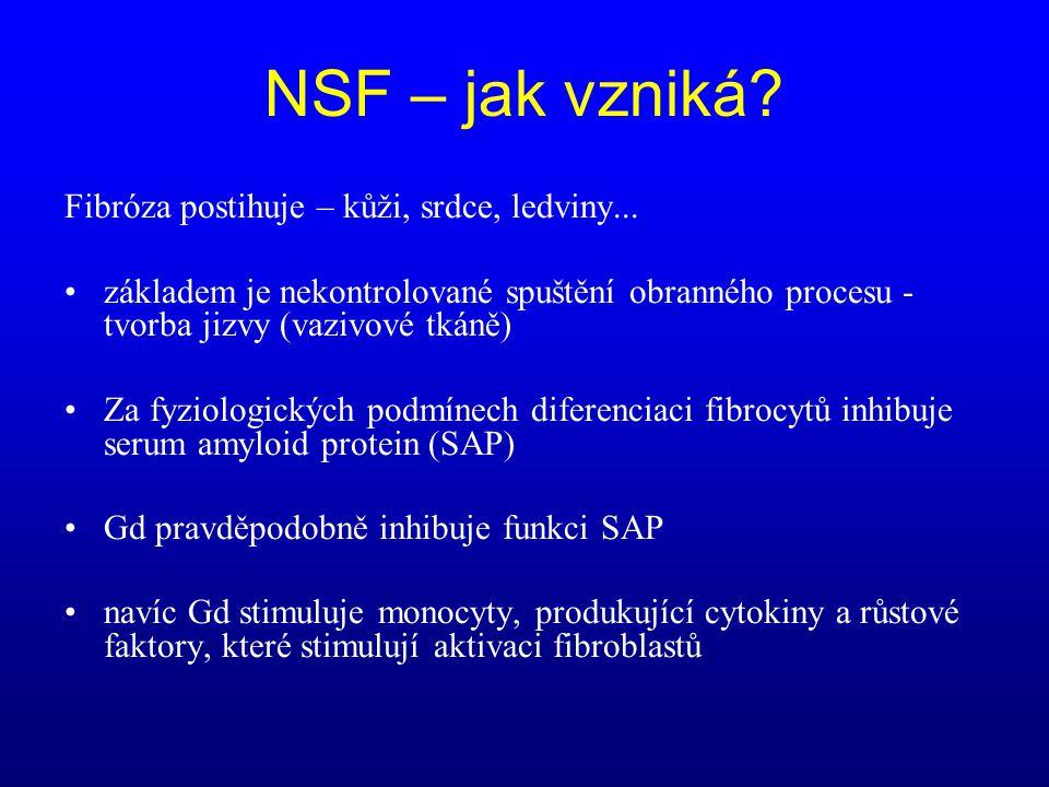 NSF – jak vzniká Fibróza postihuje – kůži, srdce, ledviny...