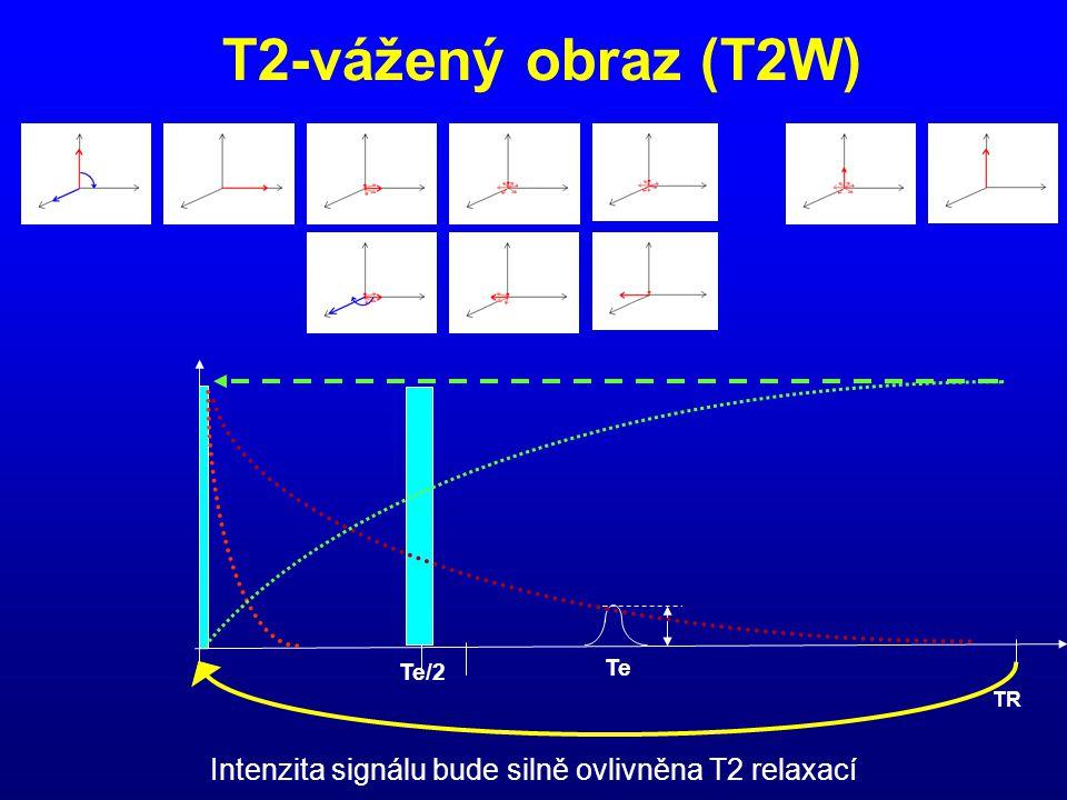Intenzita signálu bude silně ovlivněna T2 relaxací