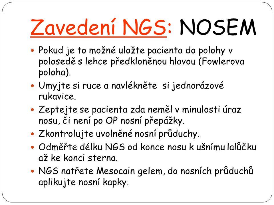 Zavedení NGS: NOSEM Pokud je to možné uložte pacienta do polohy v polosedě s lehce předkloněnou hlavou (Fowlerova poloha).