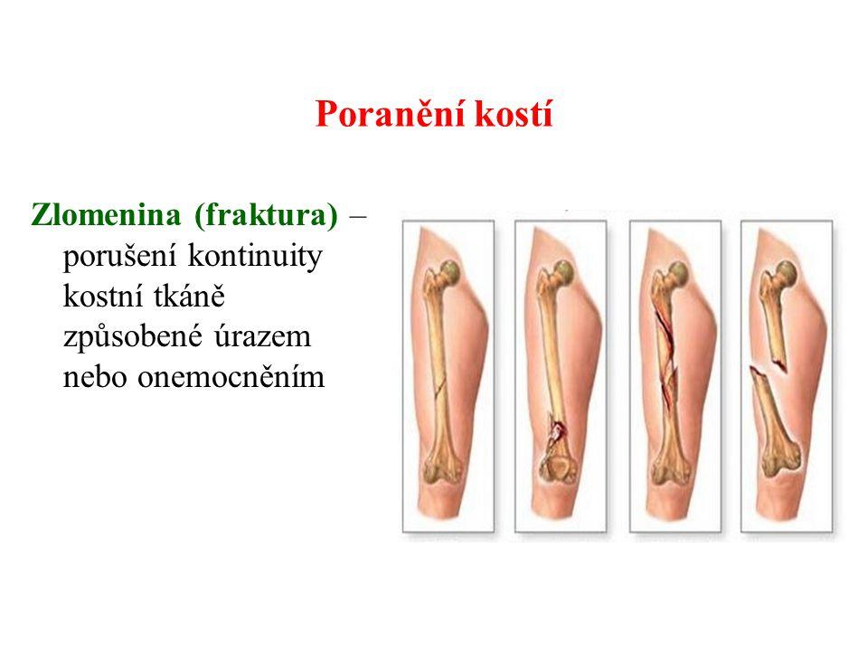 Poranění kostí Zlomenina (fraktura) – porušení kontinuity kostní tkáně způsobené úrazem nebo onemocněním.