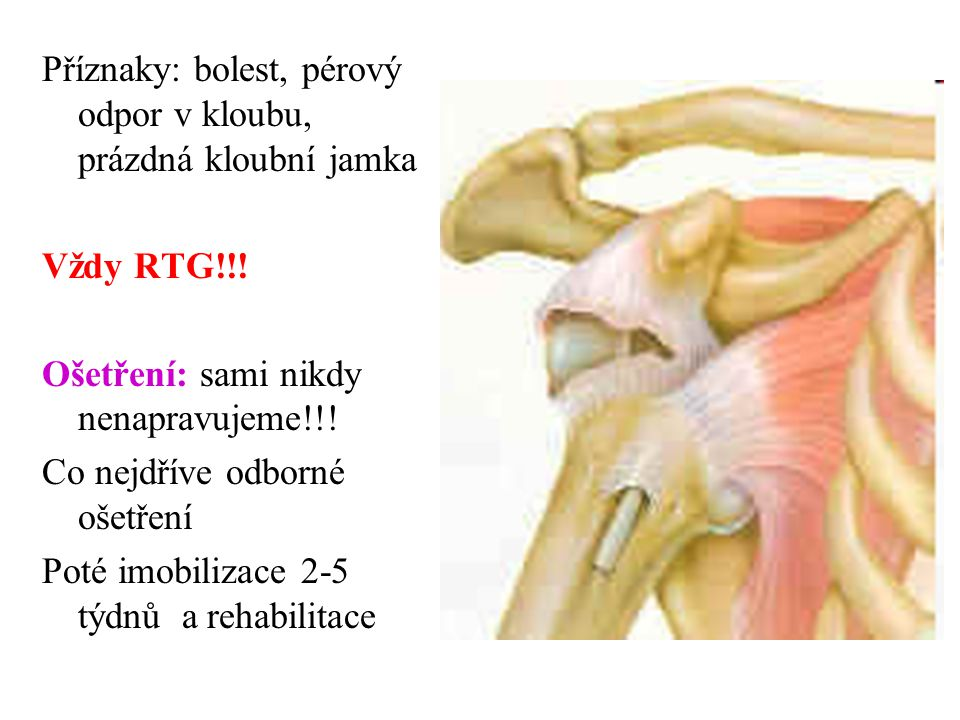 Příznaky: bolest, pérový odpor v kloubu, prázdná kloubní jamka