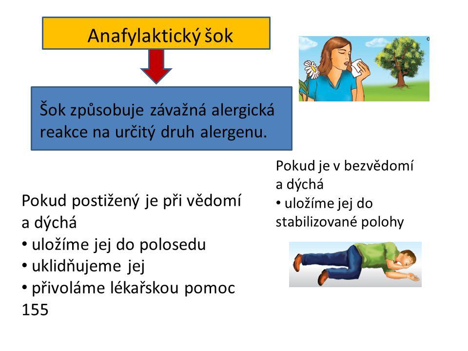 Anafylaktický šok Šok způsobuje závažná alergická reakce na určitý druh alergenu. Pokud je v bezvědomí.