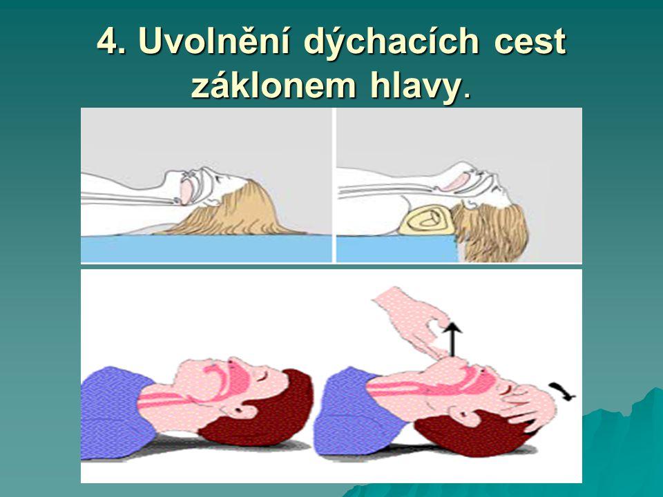 4. Uvolnění dýchacích cest záklonem hlavy.