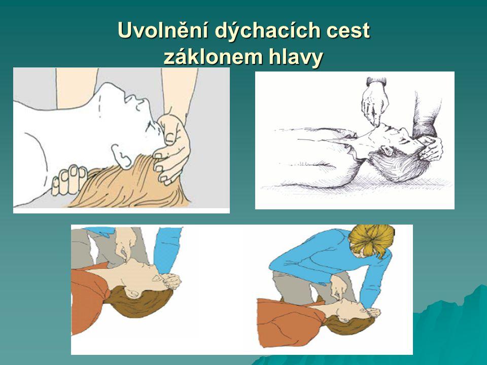 Uvolnění dýchacích cest záklonem hlavy