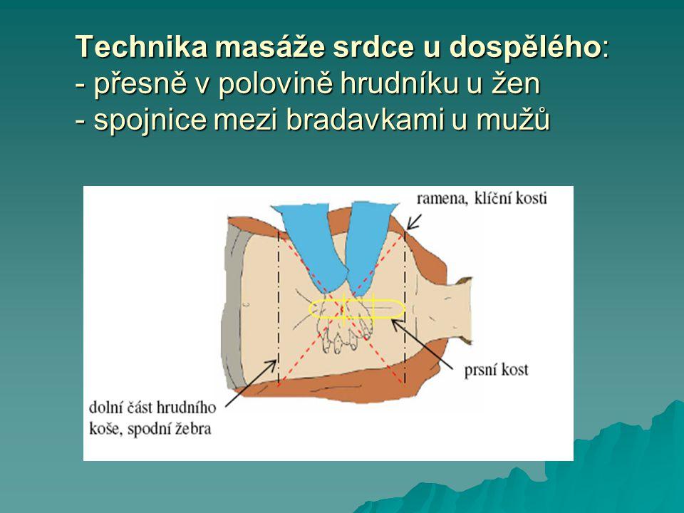 Technika masáže srdce u dospělého: - přesně v polovině hrudníku u žen - spojnice mezi bradavkami u mužů