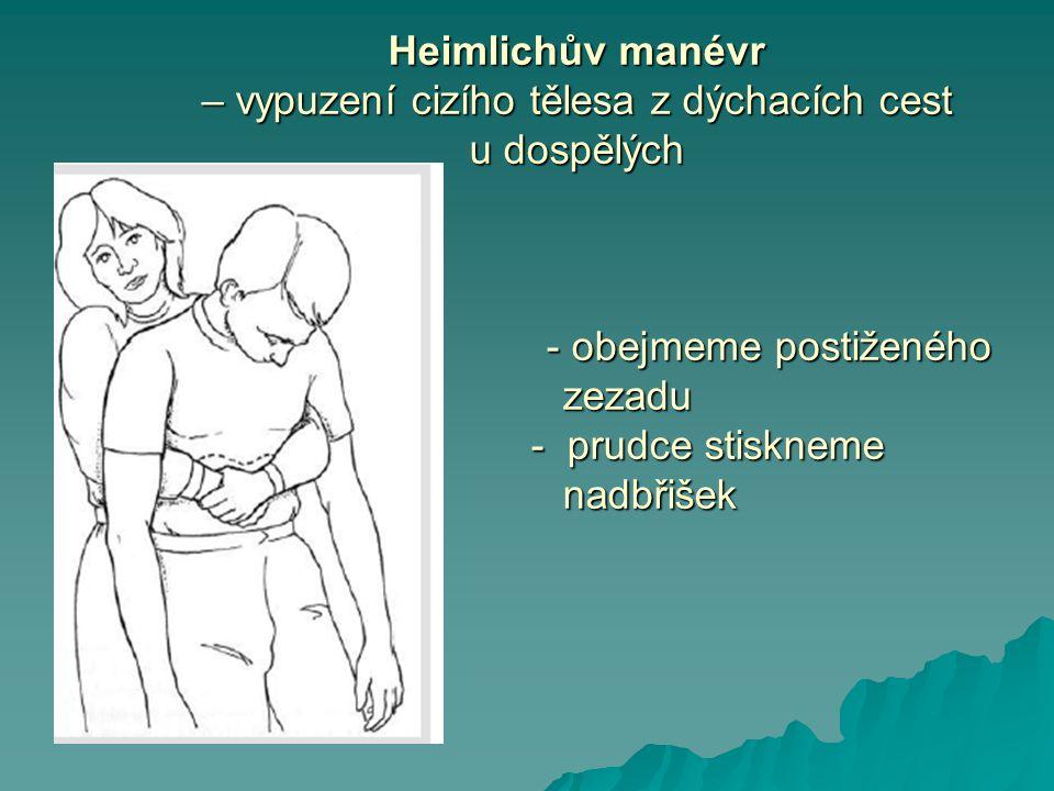 Heimlichův manévr – vypuzení cizího tělesa z dýchacích cest u dospělých - obejmeme postiženého zezadu - prudce stiskneme nadbřišek