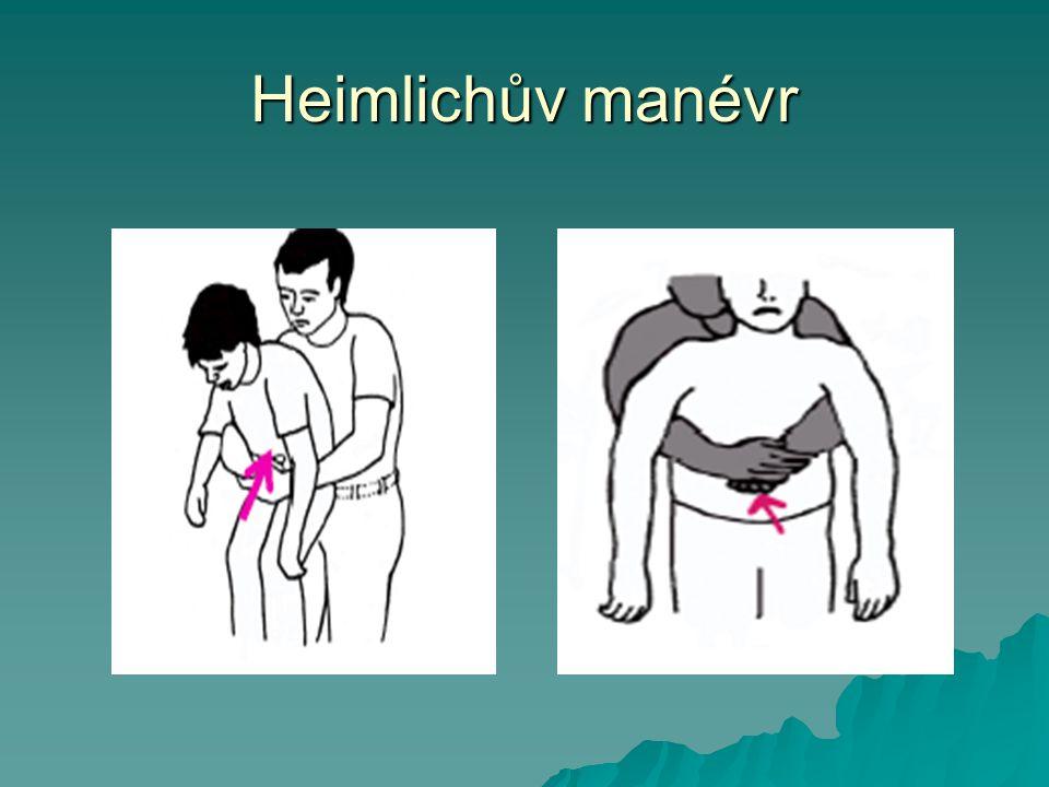 Heimlichův manévr