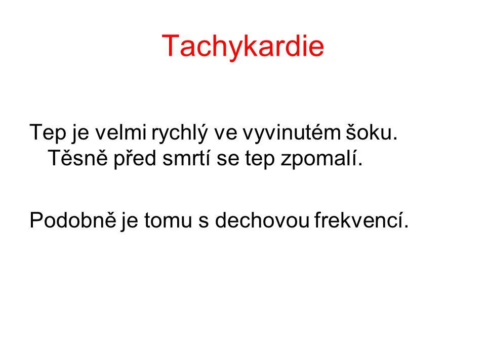 Tachykardie Tep je velmi rychlý ve vyvinutém šoku.