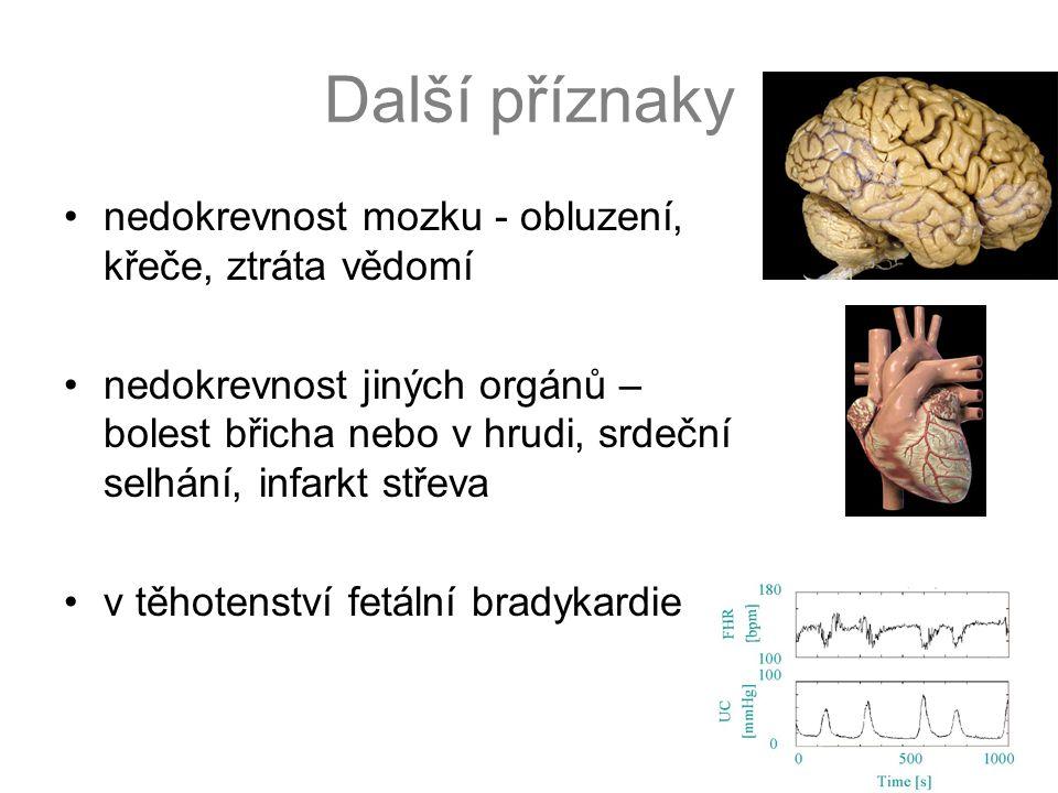 Další příznaky nedokrevnost mozku - obluzení, křeče, ztráta vědomí