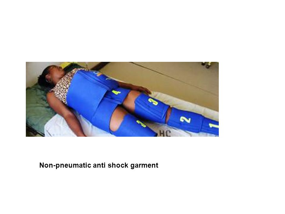 Non-pneumatic anti shock garment
