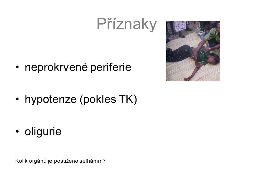 Příznaky neprokrvené periferie hypotenze (pokles TK) oligurie