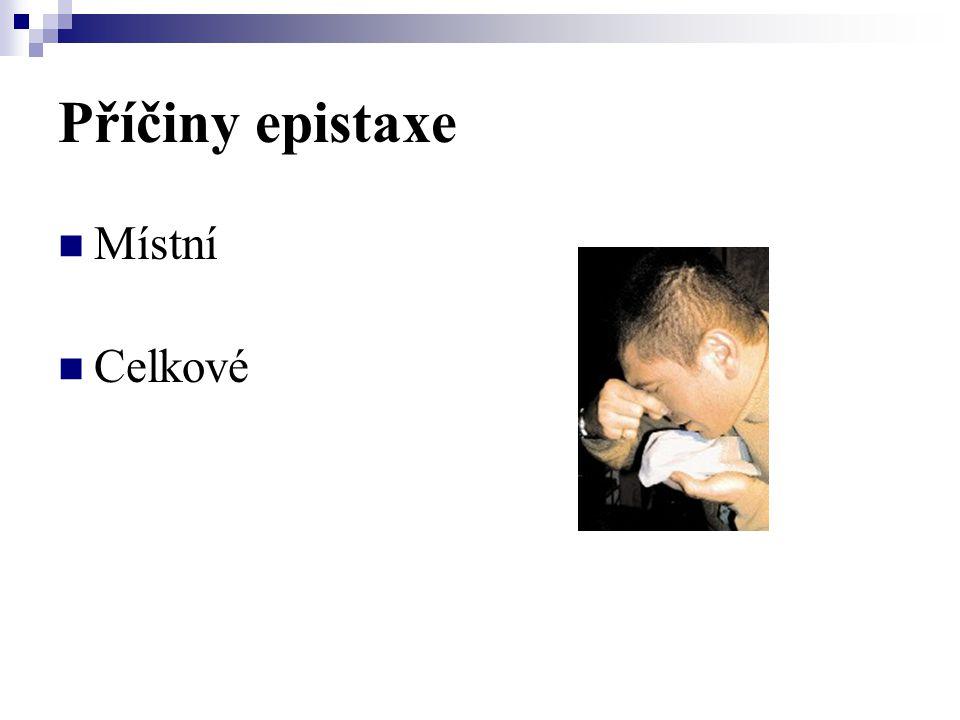 Příčiny epistaxe Místní Celkové