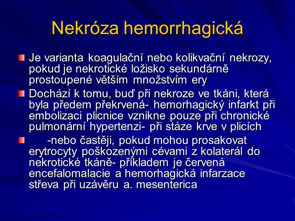 Nekróza hemorrhagická