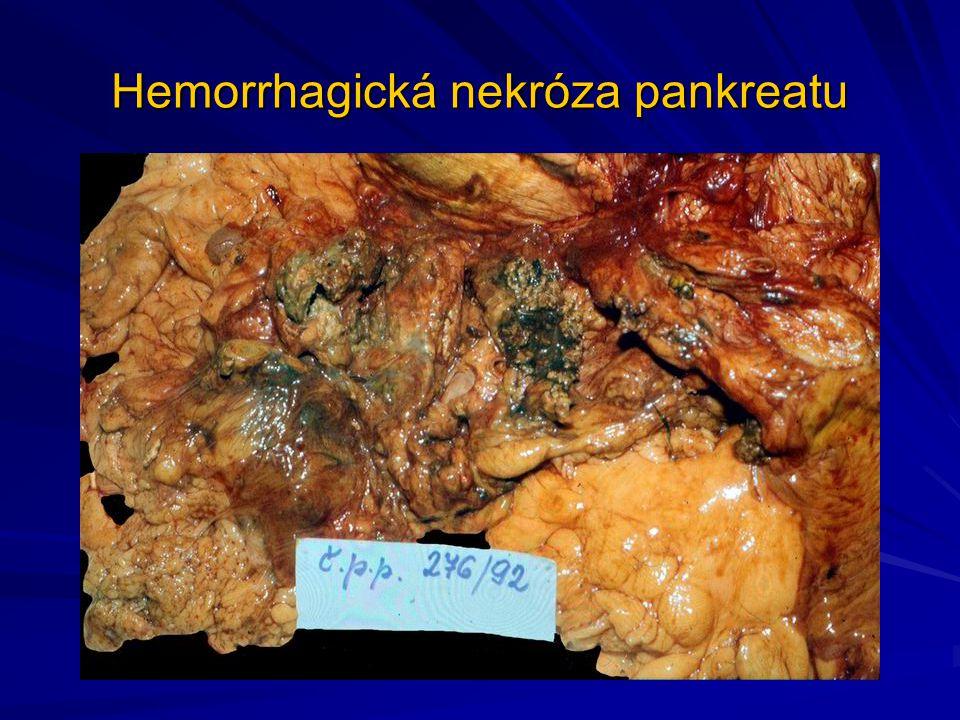 Hemorrhagická nekróza pankreatu