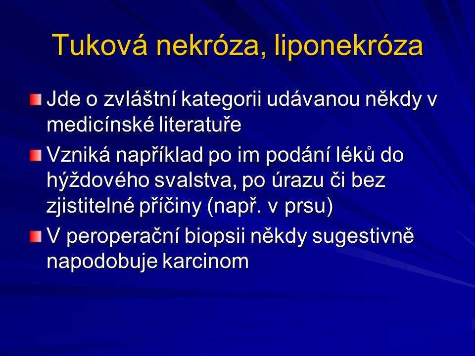Tuková nekróza, liponekróza