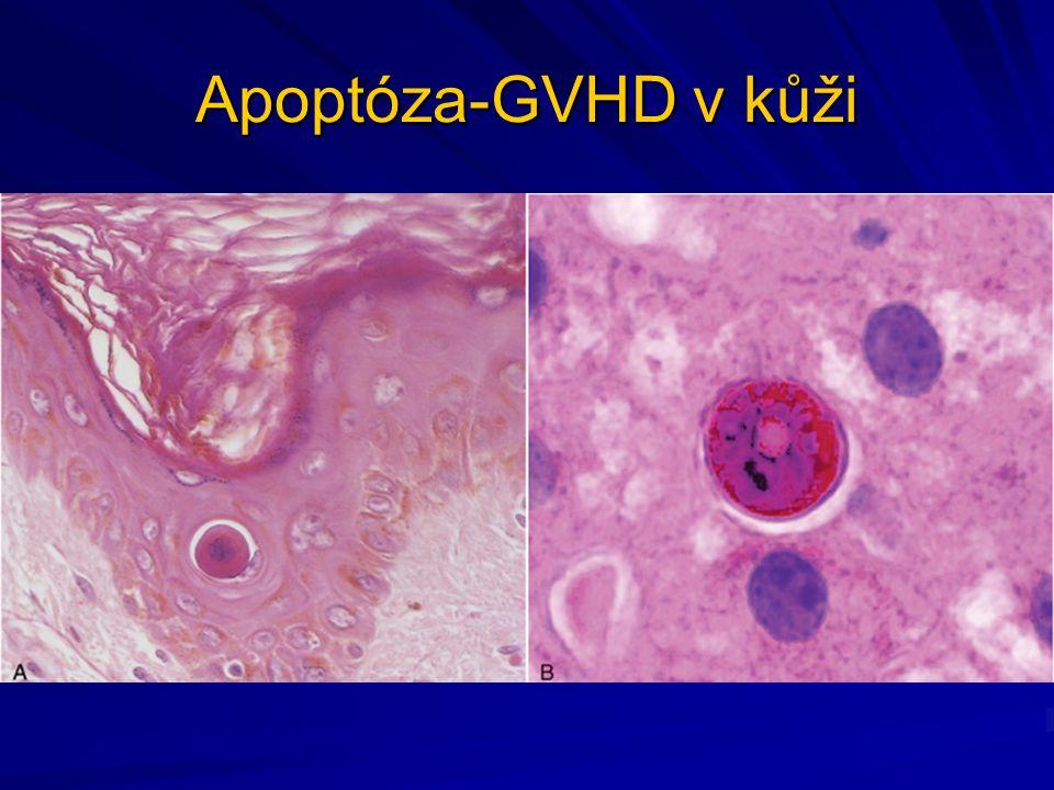 Apoptóza-GVHD v kůži