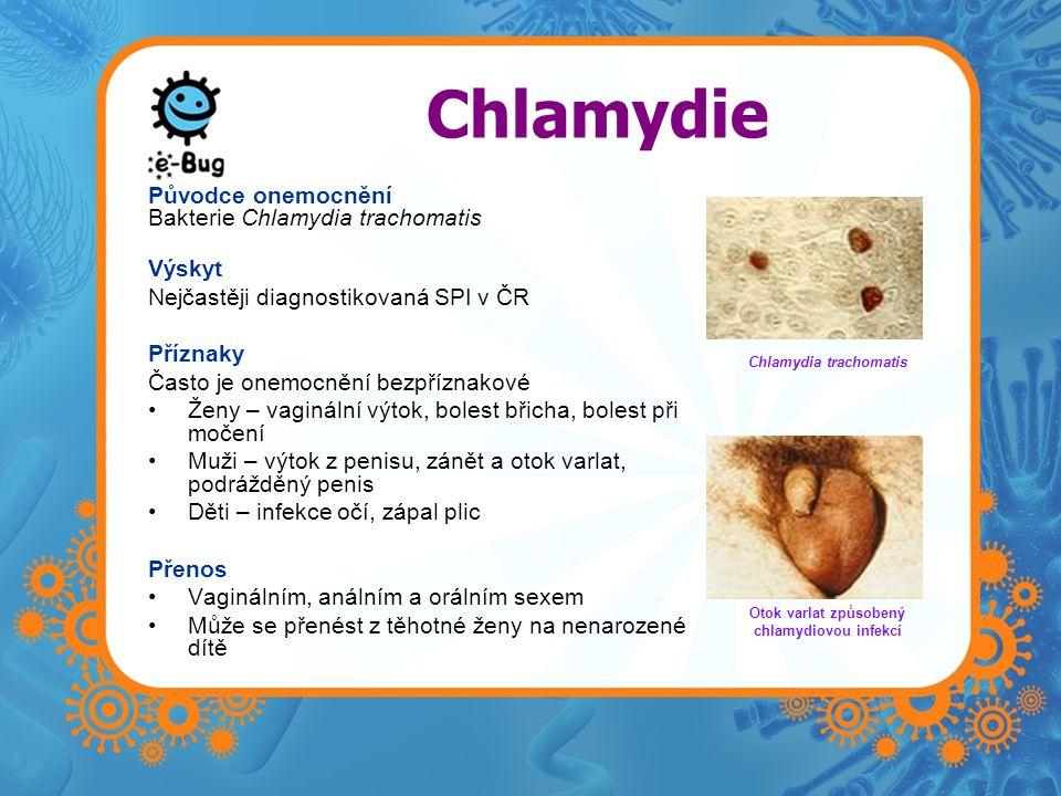 Chlamydia trachomatis Otok varlat způsobený chlamydiovou infekcí