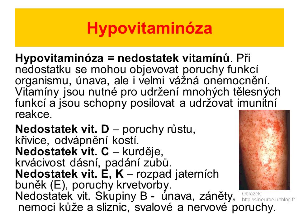 Hypovitaminóza