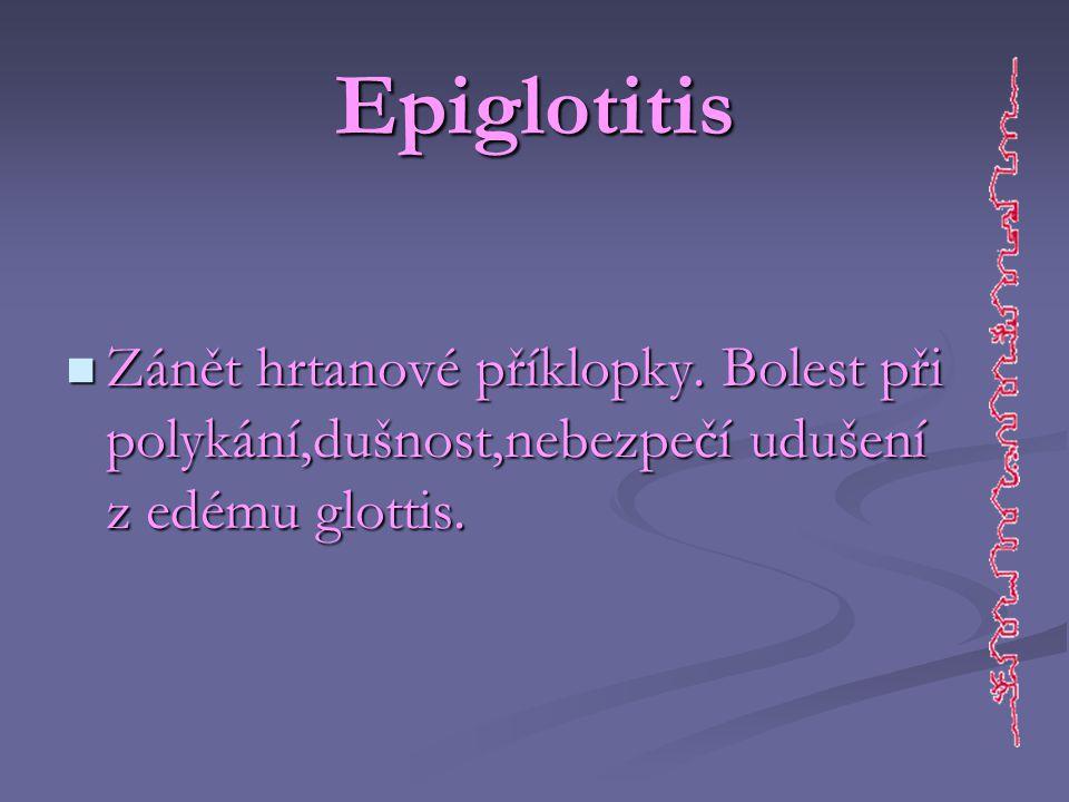 Epiglotitis Zánět hrtanové příklopky.