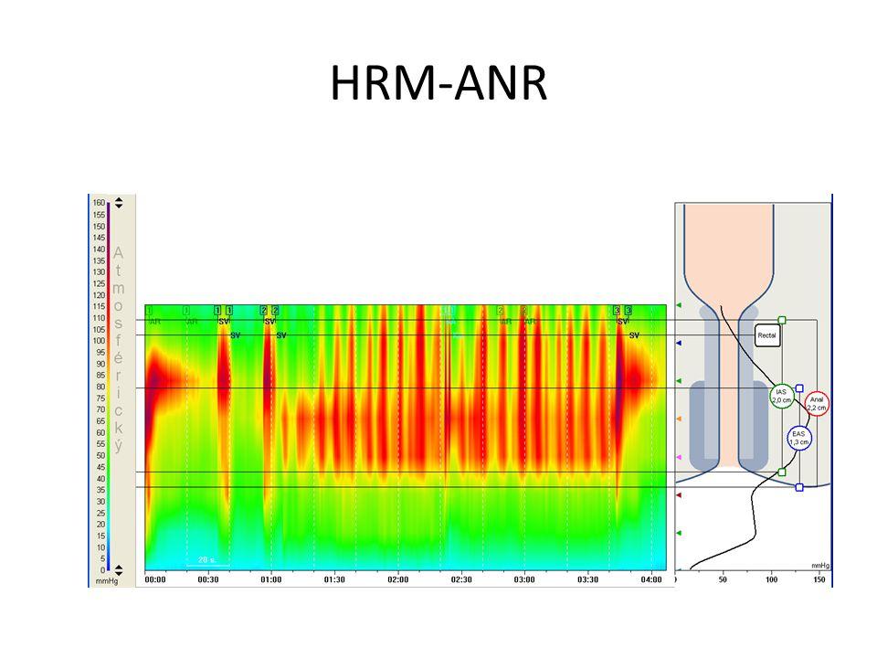 HRM-ANR