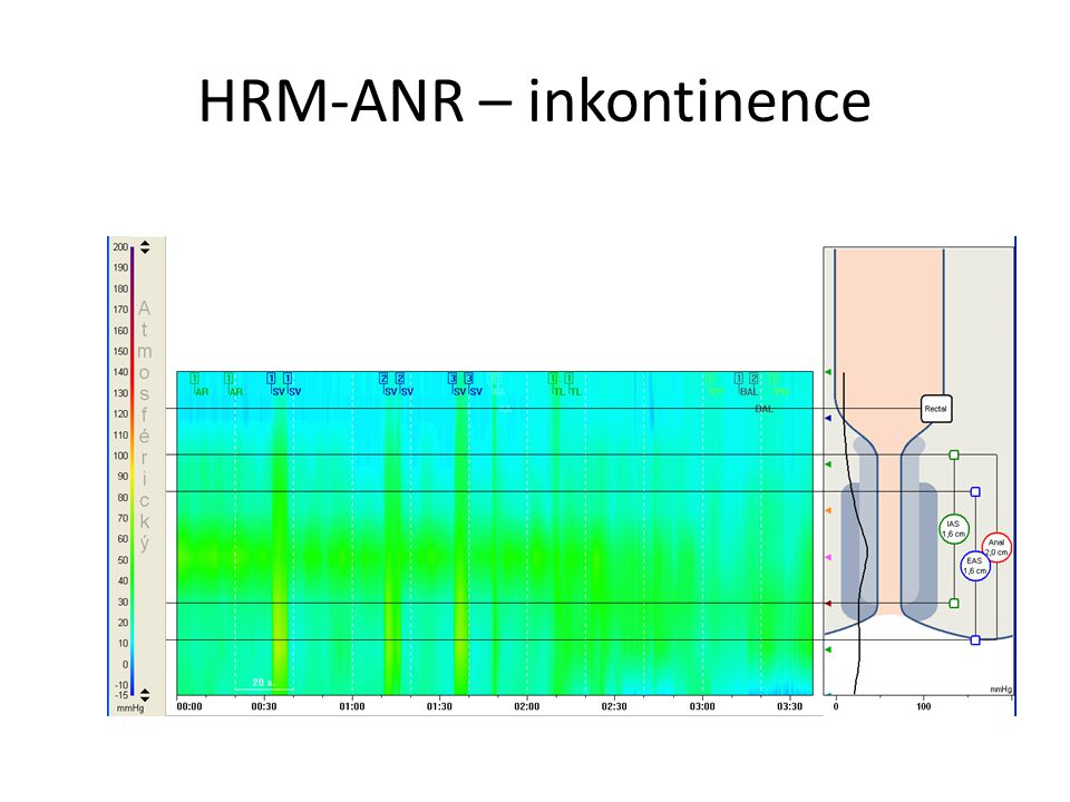 HRM-ANR – inkontinence