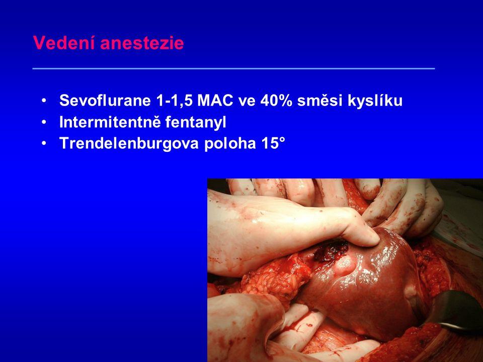 Vedení anestezie Sevoflurane 1-1,5 MAC ve 40% směsi kyslíku
