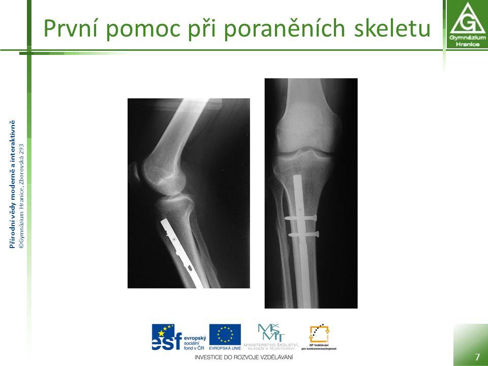 První pomoc při poraněních skeletu