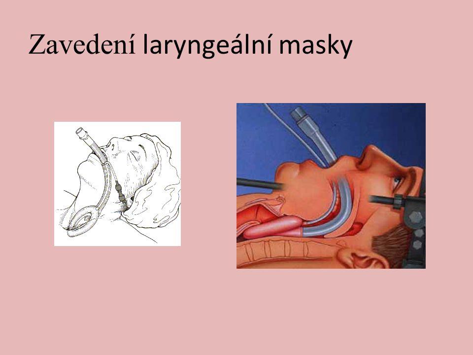 Zavedení laryngeální masky