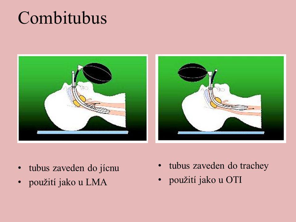 Combitubus tubus zaveden do trachey tubus zaveden do jícnu