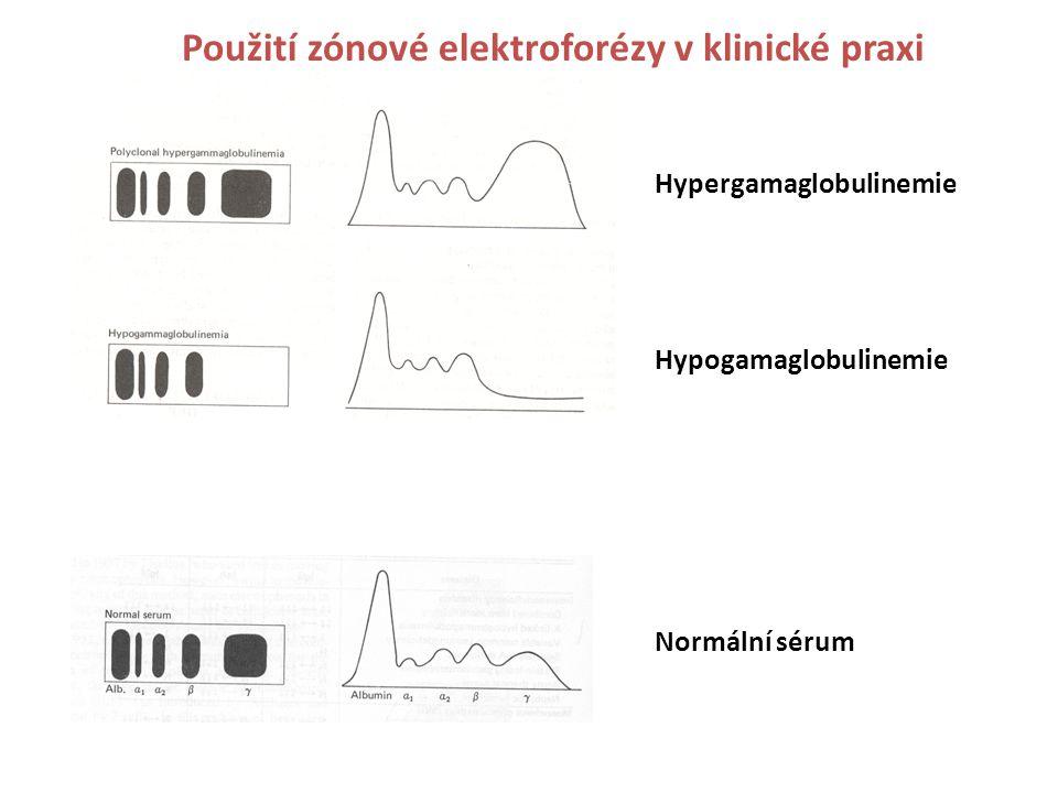 Použití zónové elektroforézy v klinické praxi