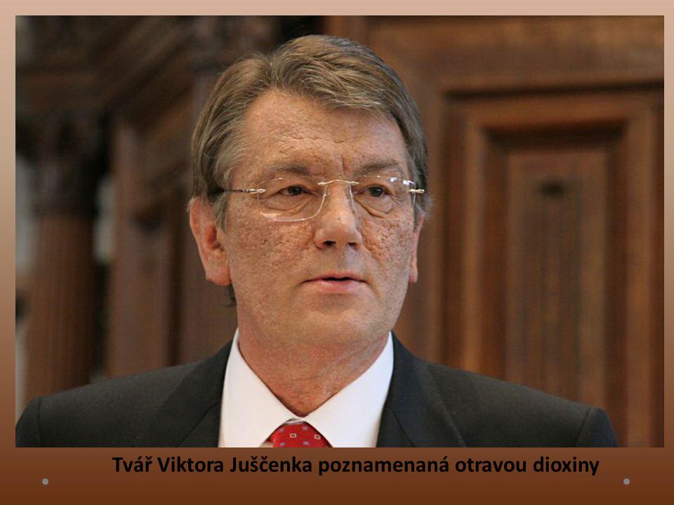 Tvář Viktora Juščenka poznamenaná otravou dioxiny