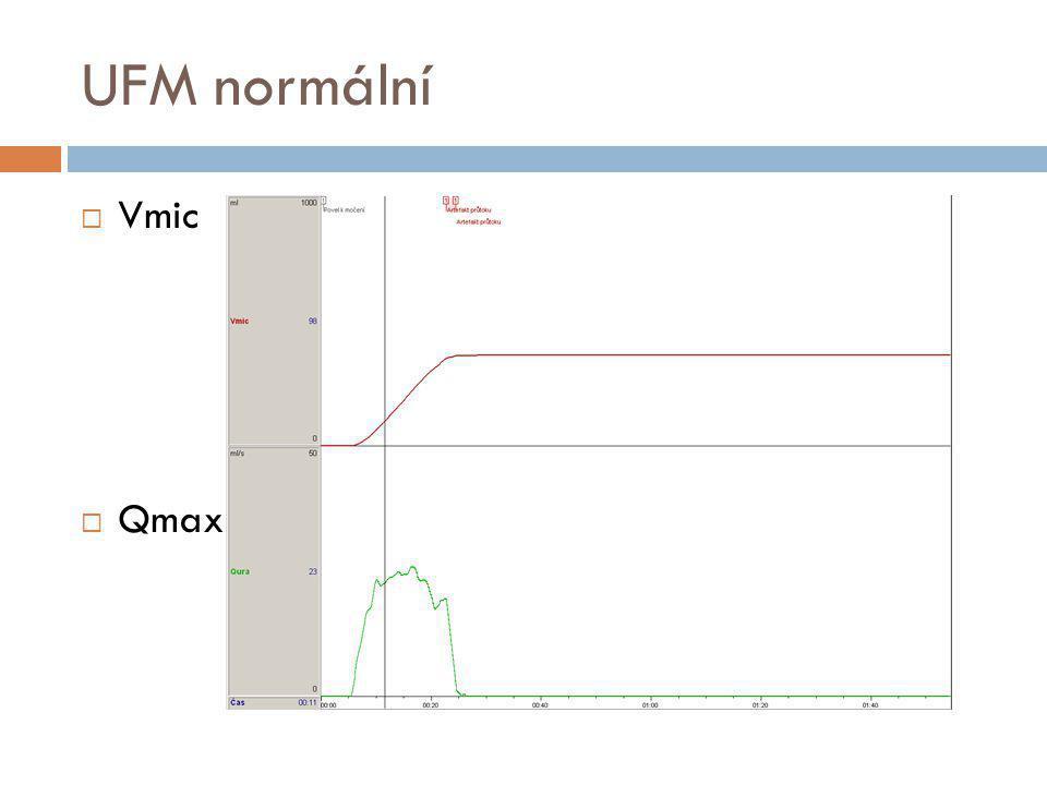 UFM normální Vmic Qmax