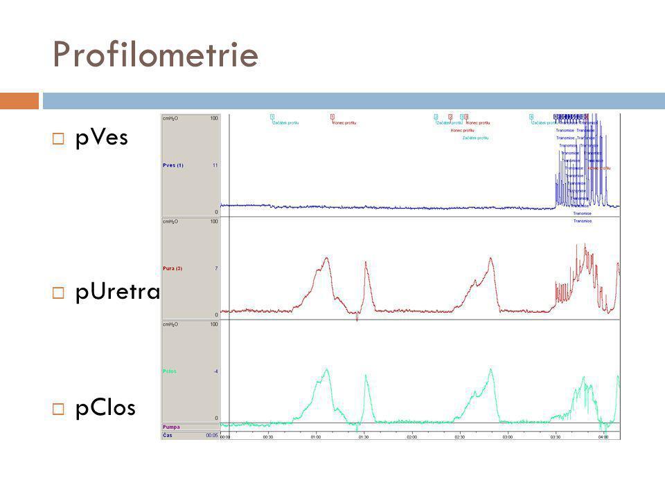 Profilometrie pVes pUretra pClos